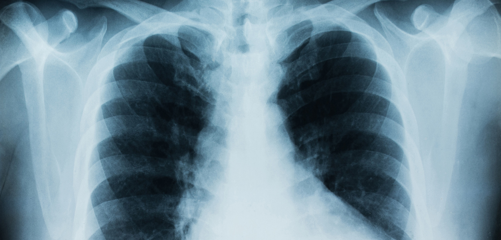 lungs, cancer, xray
